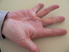 DuPuytren's Contracture showing palmar adhesion